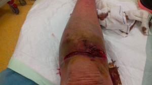 blessure-genou